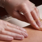 LOUISVILLE LASER HAIR REMOVAL AND HAIR REMOVAL CLINIC (36)